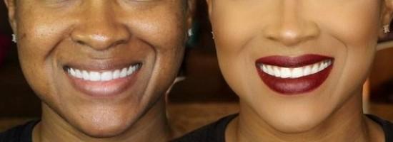 02-labios-envelhecem
