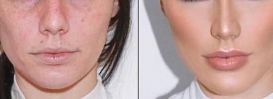 03-labios-envelhecem