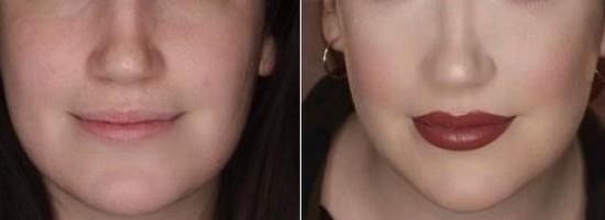 05-labios-envelhecem